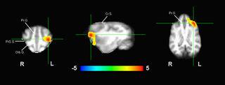 dog brain impulse control_MRI